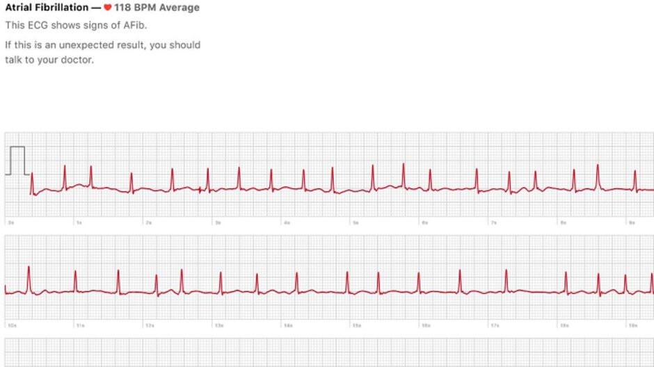 El sensor de ECG en el Apple Watch Series 4 ya ha salvado una vida