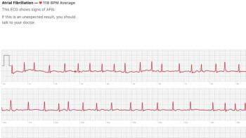 ECG sensor on the Apple Watch Series 4 has already saved a life