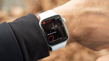 Apple Watch detected what a resting ECG couldn't, saved the life of a doctor