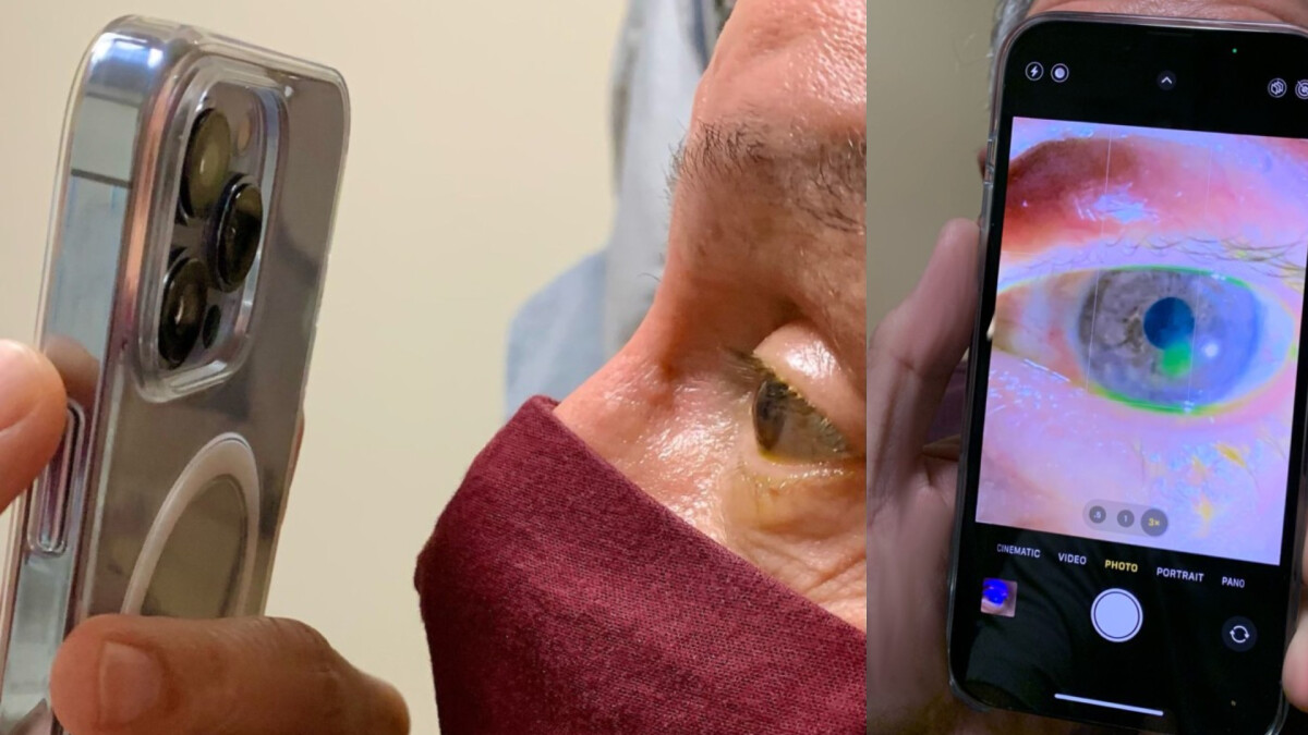 Doctor defends himself for using iPhone 13 Pro macro feature at work