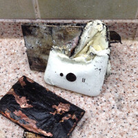 XiaoMi phone catches on fire and explodes, injuring owner