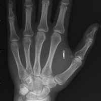 """Taking """"being connected"""" to the next level: Man implants NFC chip into his hand"""
