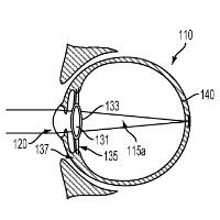 Forget Glass; Google wants to plant Android right in your eye