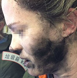 Another battery explosion on a plane causes burns to woman's face