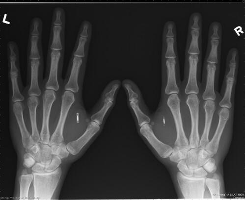 Dangerous Things - Implantable RFID chip