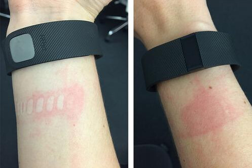 FitBit Charge wearers suffering from irritated skin - PhoneArena