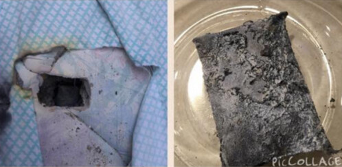 LG G3 explosion and fire damages mattress