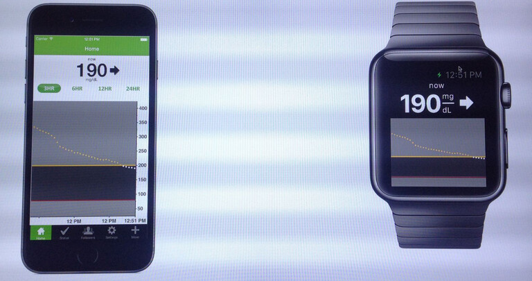 """DexCom's blood glucose app for the Apple iPhone (L) and the Apple Watch""""&nbsp - Company designing app for Apple Watch that graphs users blood glucose levels"""