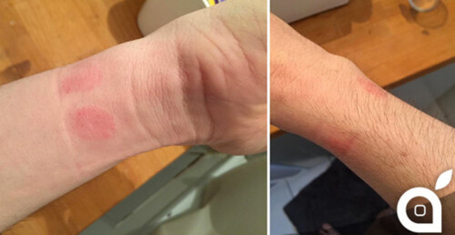 """Some Apple Watch wearers are experiencing allergic reactions from wearing the device""""&nbsp"""