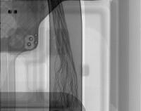 s7-edge-x-ray-12.jpg