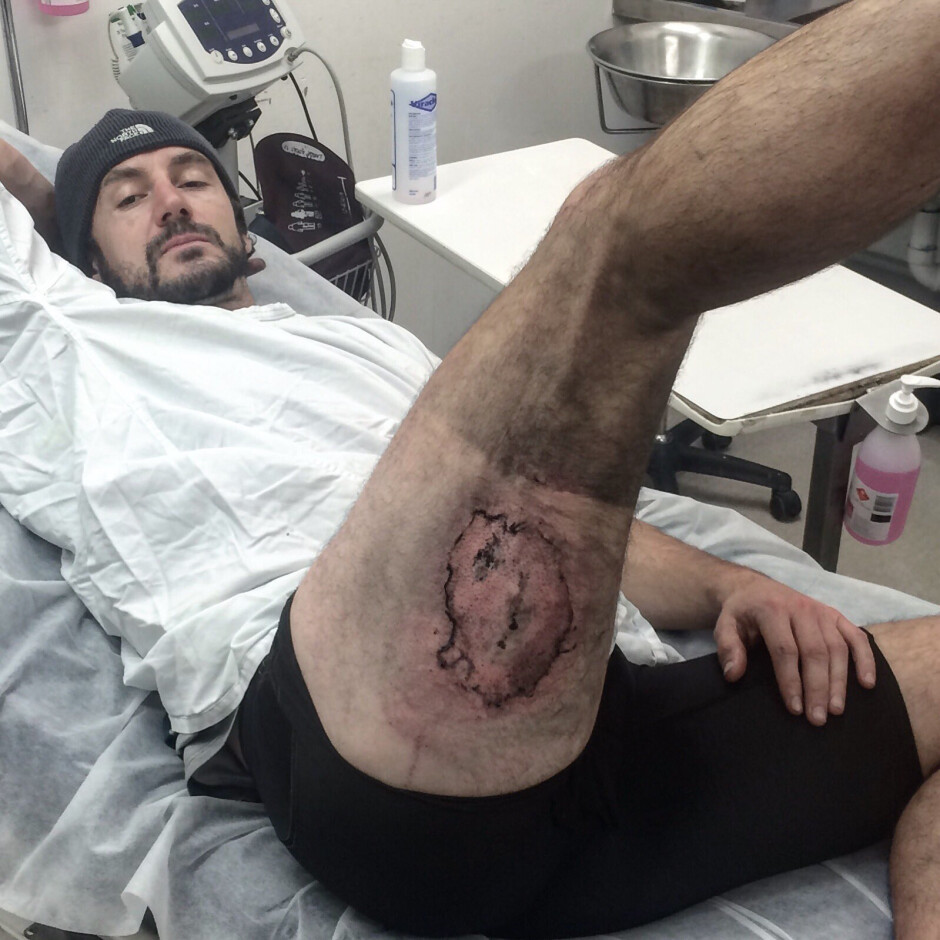 Clear's iPhone exploded in back pocket following a minor bike fall. Skin graft surgery was required - iPhone 6 explodes following minor bike fall, leaves man with third-degree burns
