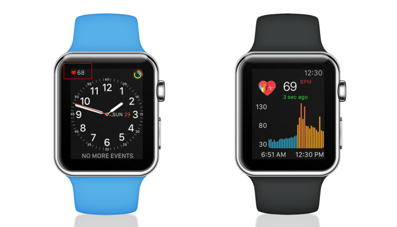 Study: Apple Watch is 97% accurate when detecting one of the common causes of heart failure