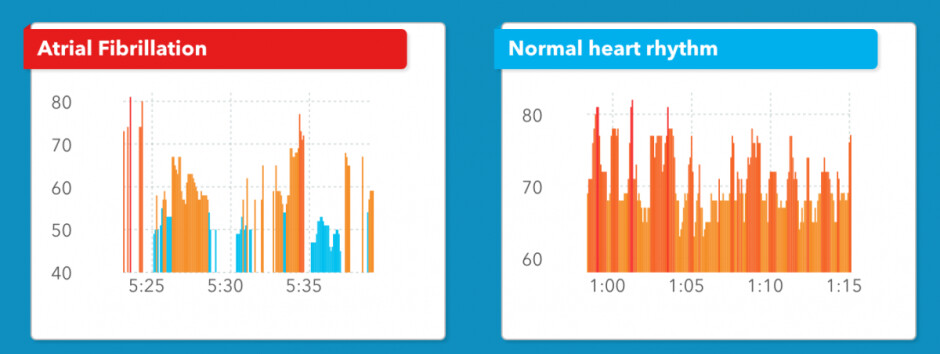 Тhe difference in the heart rhythms of a user experiencing atrial fibrillation (left) and one with a normally working heart - Study: Apple Watch is 97% accurate when detecting one of the common causes of heart failure