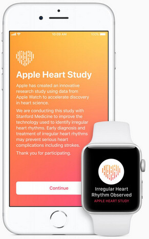 Apple is testing to see if Apple Watch sensors can detect irregular heart rhythms - Apple starts collecting heart rate data from Apple Watch users for a new heart study