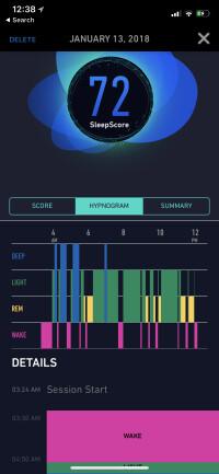 SleepScore-Max-Hands-On-App-2