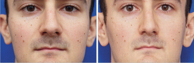 On the left is the selfie-enlarged nose and on the right – the regular one - How do selfies affect nose surgeries?
