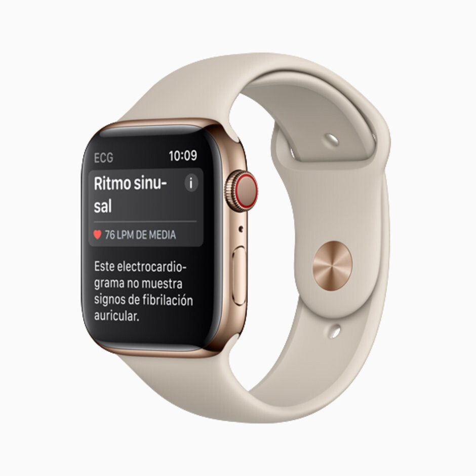 Sinus rhythm notification on the left (in Spanish) and an irregular heart rhythm warning on the right (in Italian - The Apple Watch's ECG is finally available in Europe