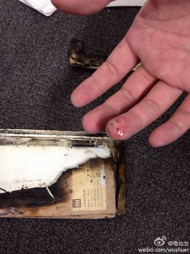 Phone's owner had a burned finger